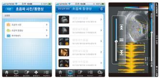 Ultrasound app, Saybebe